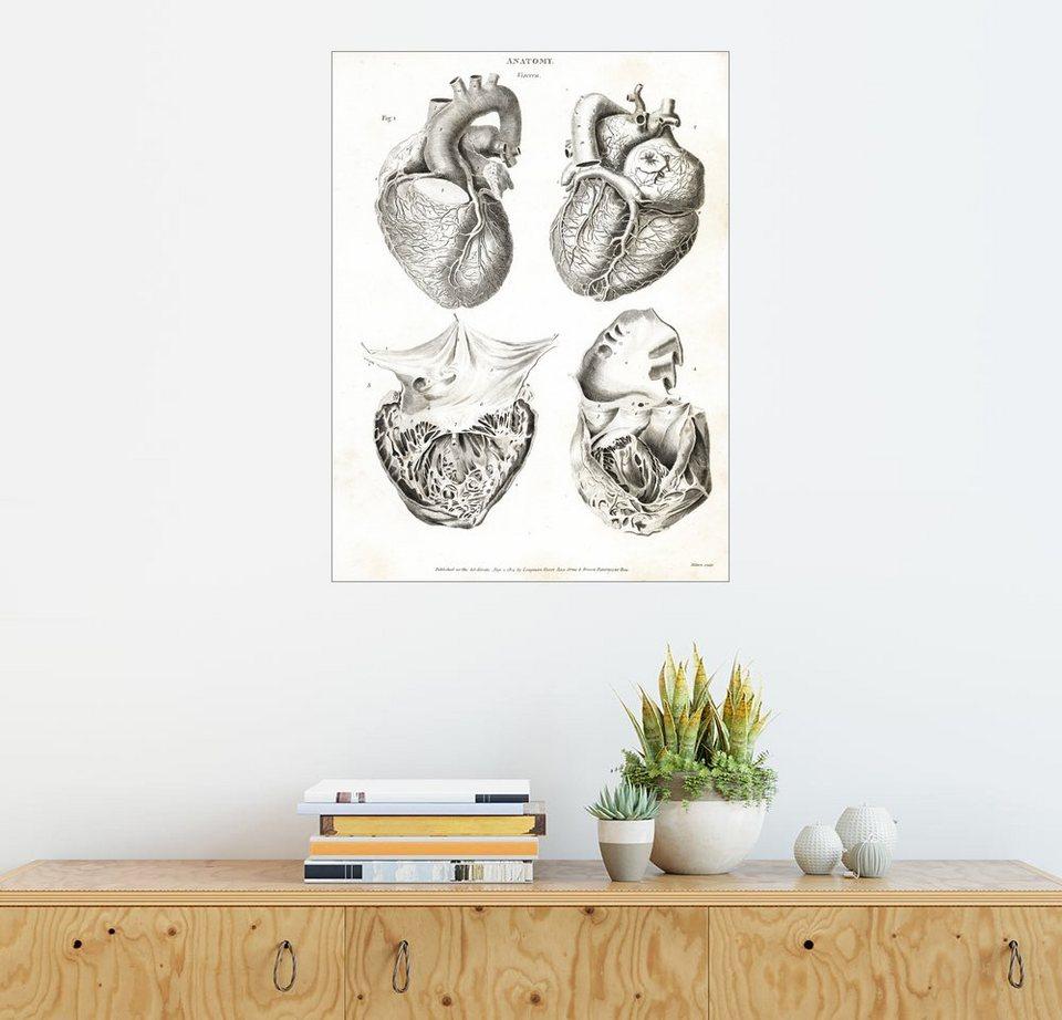 Posterlounge Wandbild - Thomas Milton »Anatomie des menschlichen ...