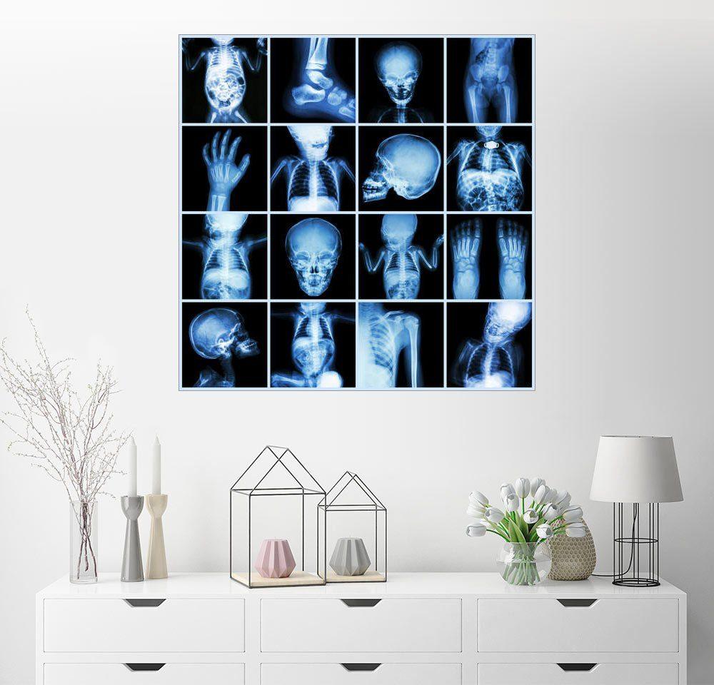 Posterlounge Wandbild »Röntgenbilder eines Kindes«